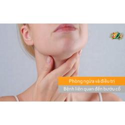 Hướng dẫn cách phòng ngừa và điều trị bệnh bướu cổ hiệu quả